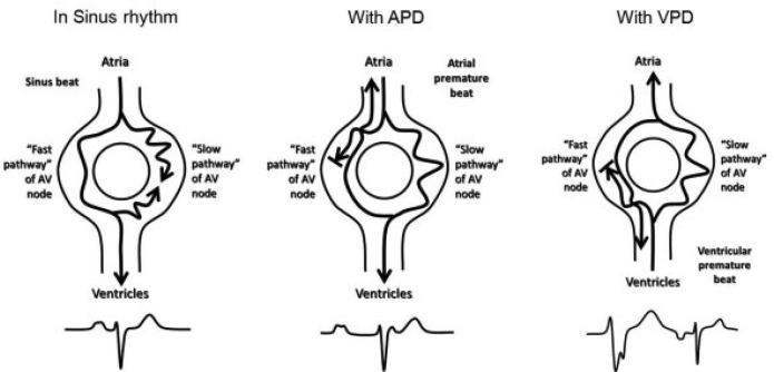 Dual Atrioventricular Nodal Pathways Physiology A Review of