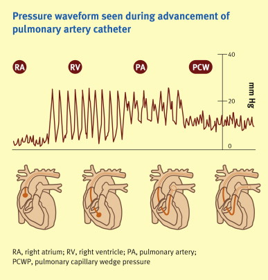 Monitoring arterial, central venous and pulmonary capillary wedge