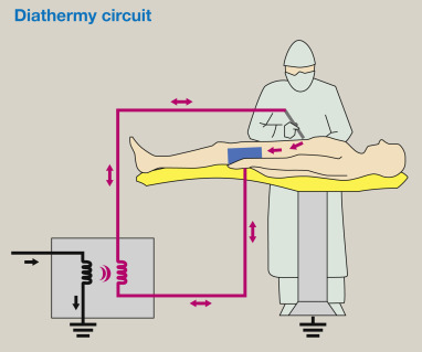 Surgical diathermy and electrical hazards causes and prevention