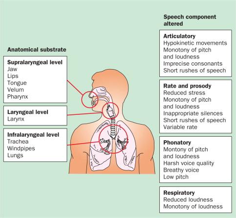 Treatments for dysarthria in Parkinson\u0027s disease - ScienceDirect