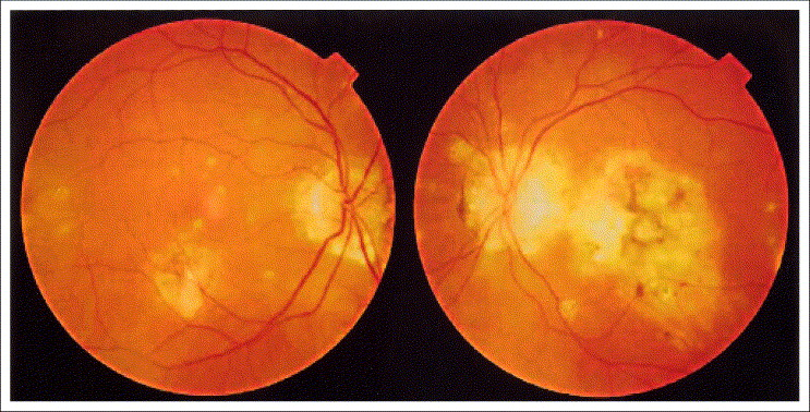 Preventing reactivation of ocular histoplasmosis Guidance for