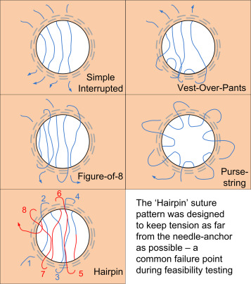 Modeling suture patterns for endoscopic gastrojejunostomy revision