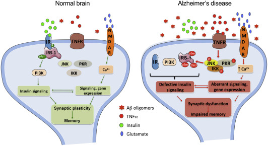 How does brain insulin resistance develop in Alzheimer\u0027s disease