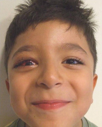 An unusual complication following eyelid ptosis surgery Superior - ptosis surgery