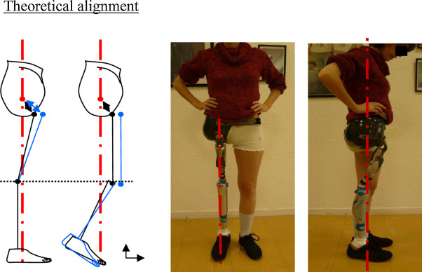Amputation and prosthesis fitting in paediatric patients - ScienceDirect