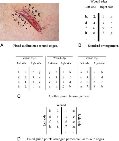 Suture Coding A Novel Educational Guide for Suture Patterns