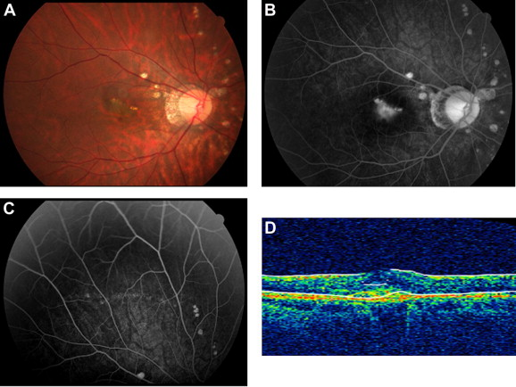 Bevacizumab treatment for choroidal neovascularization in a patient