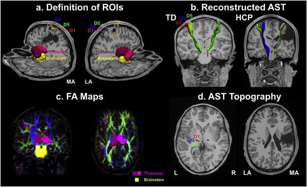 Reorganization of the somatosensory cortex in hemiplegic cerebral - ma cerebral palsy