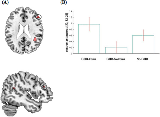 Effect of GHB-use and GHB-induced comas on dorsolateral prefrontal