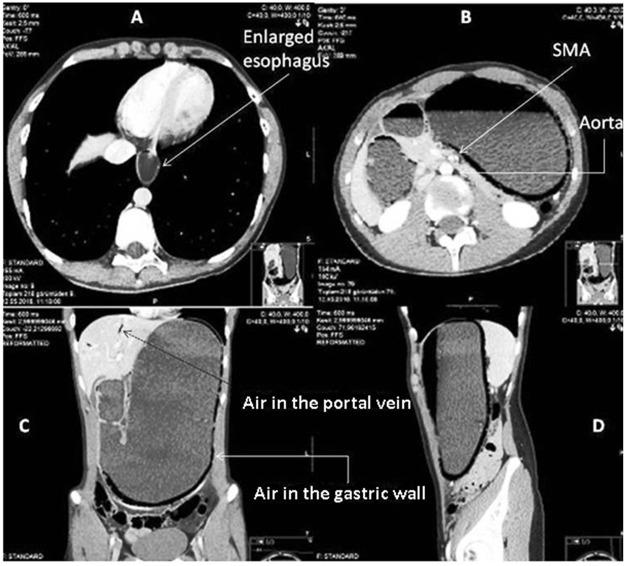 Superior mesenteric artery syndrome A rare but life threatening - sma syndrome