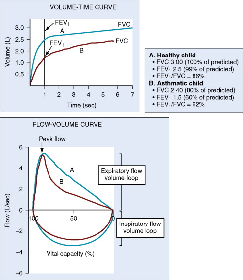 Peak Expiratory Flow - an overview ScienceDirect Topics