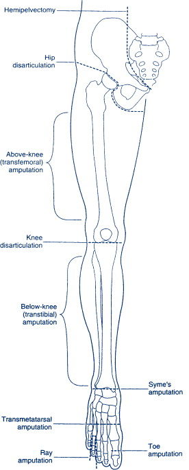 Limb Prosthesis - an overview ScienceDirect Topics