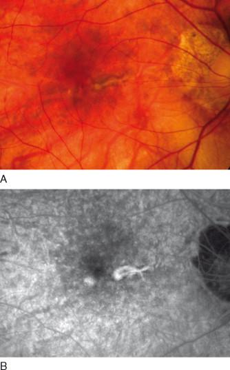 Presumed Ocular Histoplasmosis - First Stem Cell Treatment In Humans
