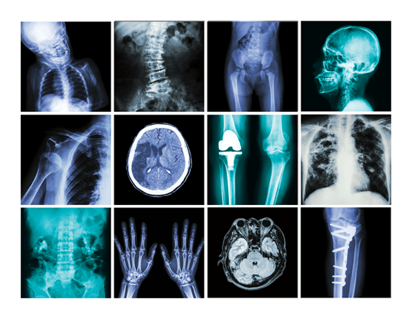 Kids Fall Wallpaper When To Question X Rays And Ct Scans Consumer Reports