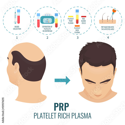 Male hair loss treatment with platelet rich plasma injection Stages