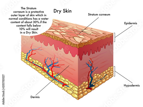 vector medical illustration of the effects of dry skin - Buy this