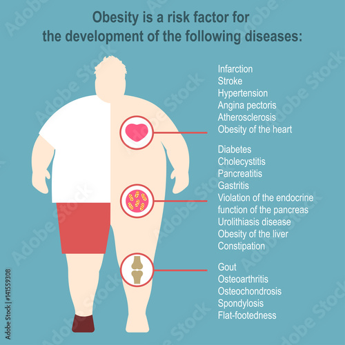 Obesity Vector illustration Poster template The effect of obesity on