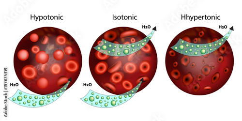 Effect of different solutions on blood cellsThe effect of osmosis