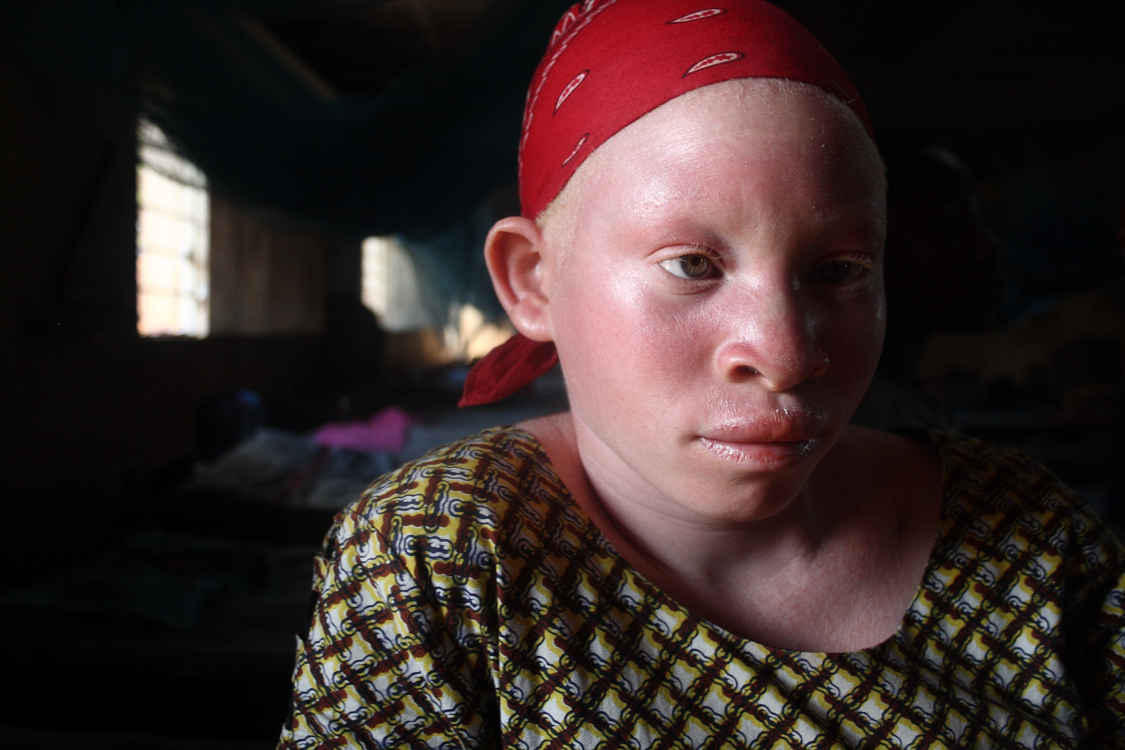Decoration Americaine Militaire Irin Magic And Murder Albinism In Malawi