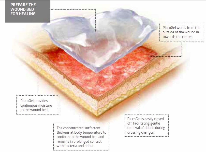 Medline - Influence of Biofilms in Wound Healing