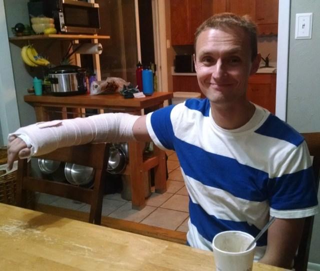 Splinted Arm