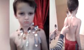 طفل معجزة جسده مغناطيس