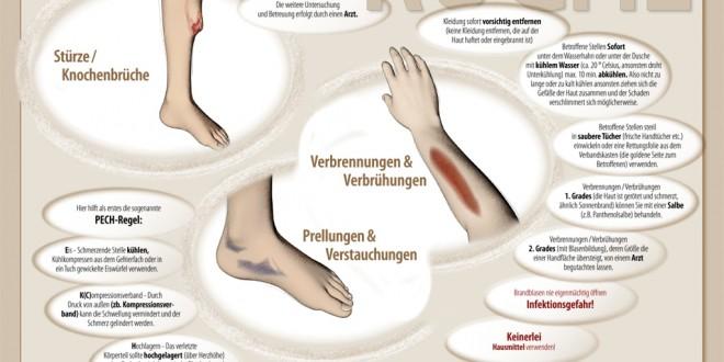 Dampfgarer Mit Mikrowelle | Erste Hilfe In Der Kueche - Infografik ...