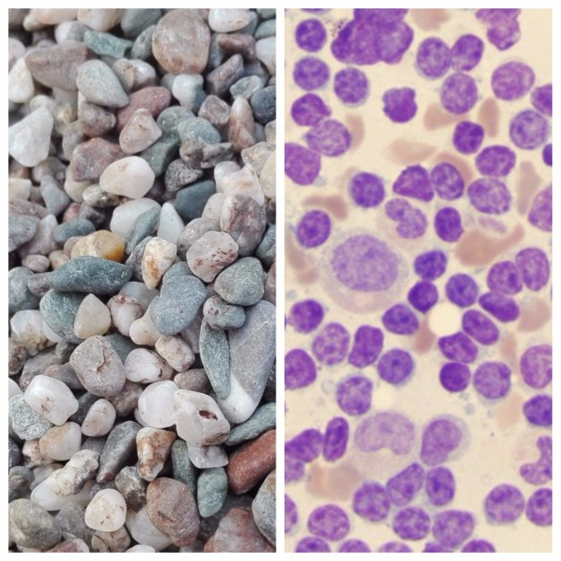 Left: Beach gravel Right: Leukemia cells