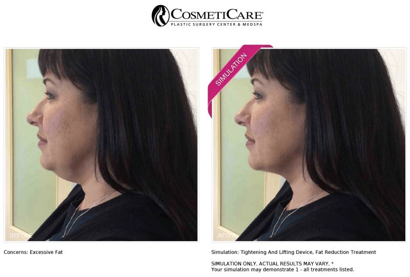 Trying On A Treatment With New Look Now at CosmetiCare   @CosmetiCare #CosmetiCareMoms #NewLookNow #ad