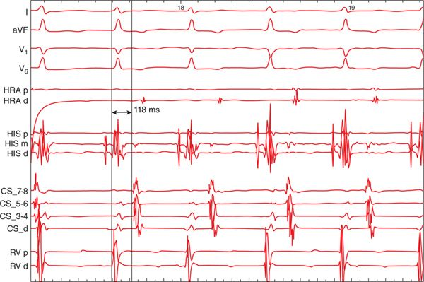 AV Nodal Reentrant Tachycardia Atypical Basicmedical Key