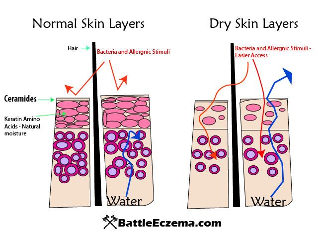 Best Lotions for Eczema - Battle Eczema