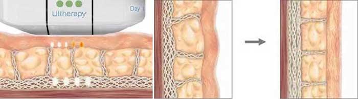 Cơ chế hoạt động của ultherapy