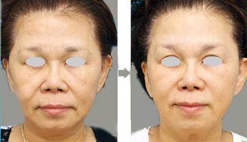 Kết quả điều trị ultherapy