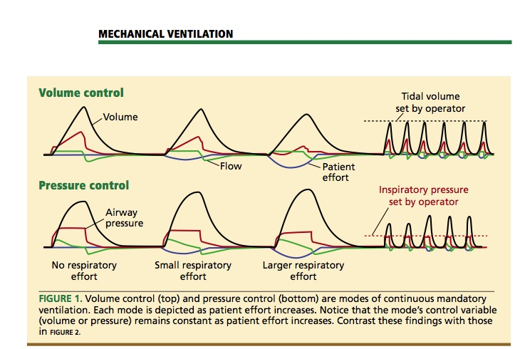 Mechanical Ventilation Modes #rcp #rt #respiratory Respiratory - resume job examples