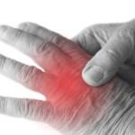 Arthritis Physical Therapist