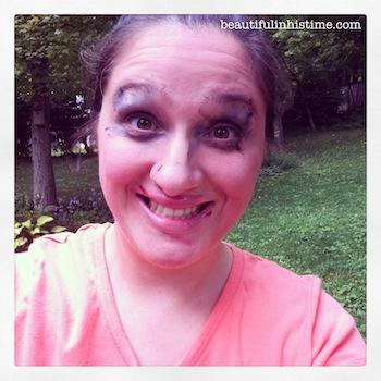 13 mommy makeover