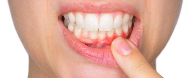 gum disease Archives - Beautiful Smiles of Long Island