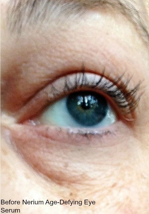 NERIUM™ Age-Defying Eye Serum-eye before treatment