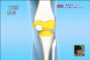 軟骨の再生5