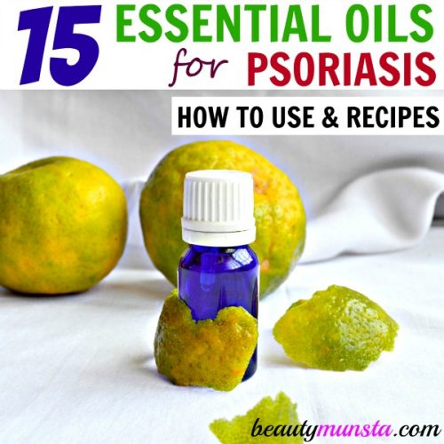 List of Best Essential Oils to Treat Psoriasis  Recipes - beautymunsta - essential oil for psoriasis
