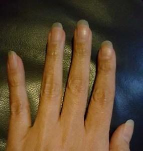 1 Body Hair Skin and Nails 7