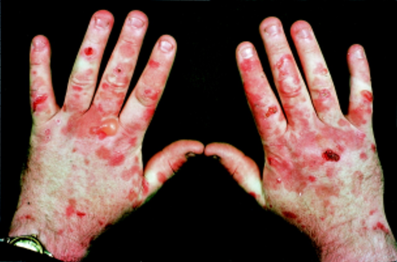 Porphyria-the Vampire Disease 301 Moved Permanently