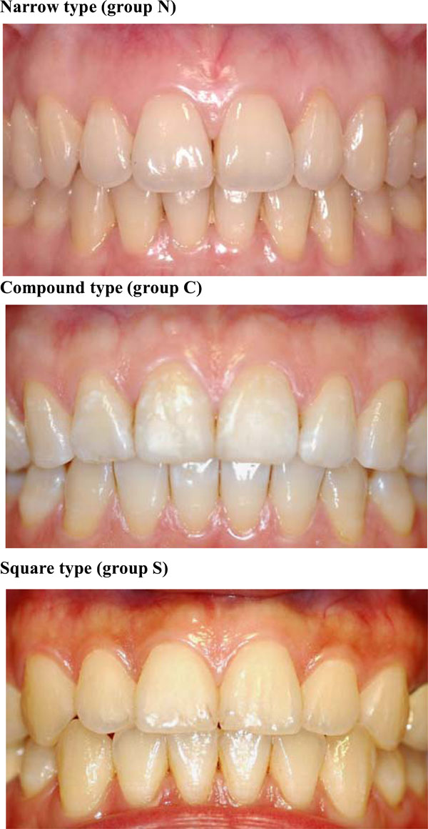 New Classification of Crown Forms and Gingival Characteristics in