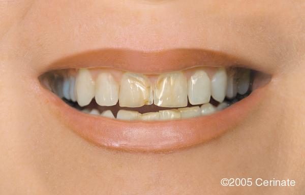 Jeannette Grauer Dds Pc Top Dentist Union Nj Smile
