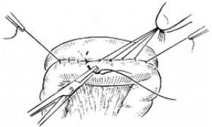 胃空腸吻合術_英文_拼音_什么是胃空腸吻合術_醫學百科
