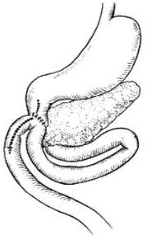 環狀胰手術_拼音_什么是環狀胰手術_醫學百科