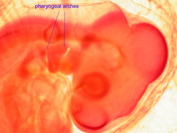 PHARYNGEAL ARCHES