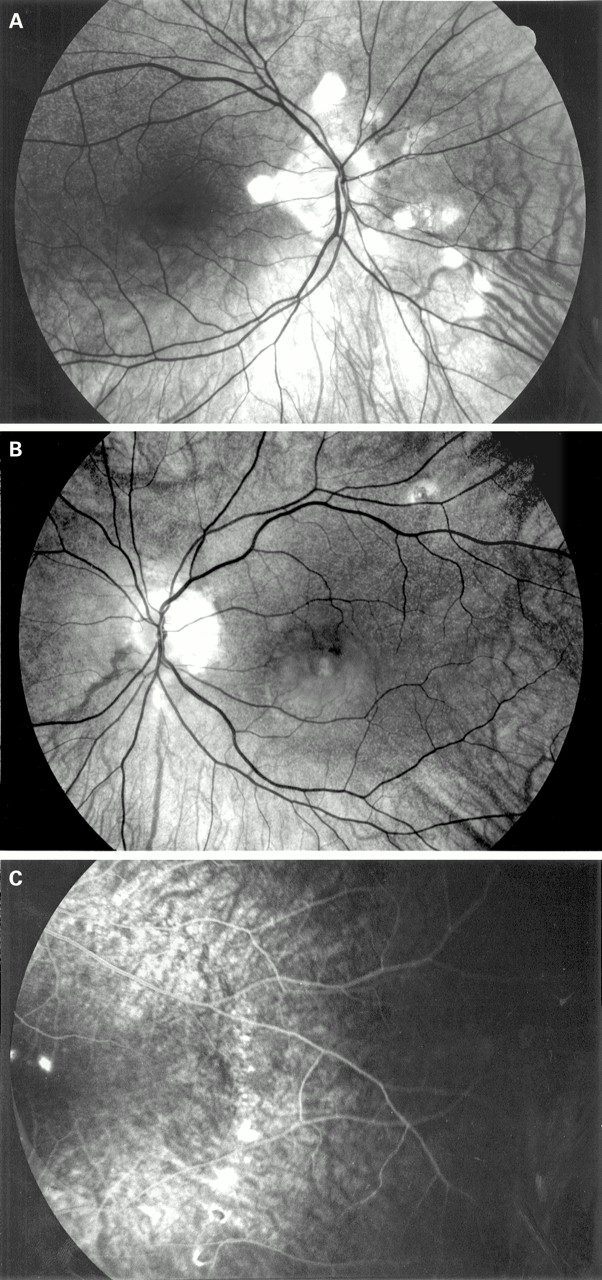 Presumed ocular histoplasmosis in the Netherlands\u2014an area without - Presumed Ocular Histoplasmosis