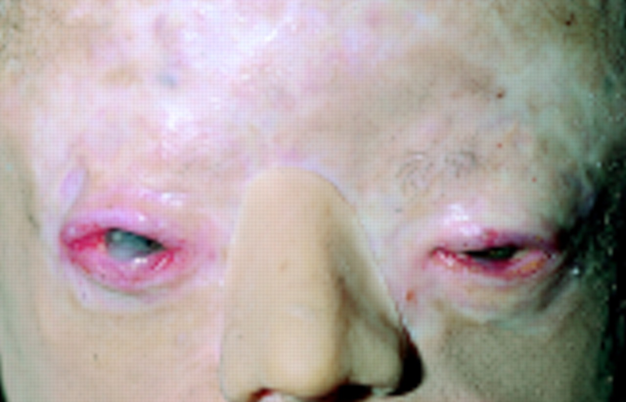 Porphyria-the Vampire Disease Ocular Involvement In Congenital Erythropoietic Porphyria