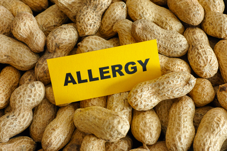 peanuts allergy